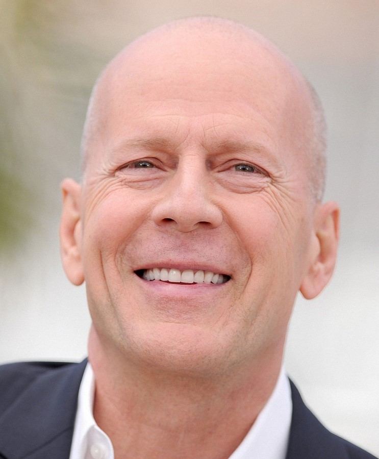 Bruce Willis plastic surgery (15)