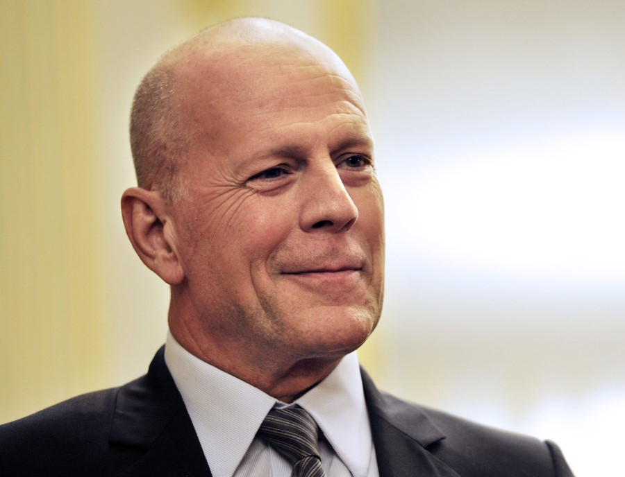 Bruce Willis plastic surgery (21)