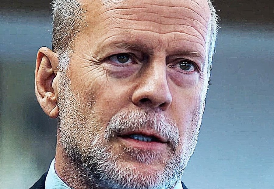 Bruce Willis plastic surgery
