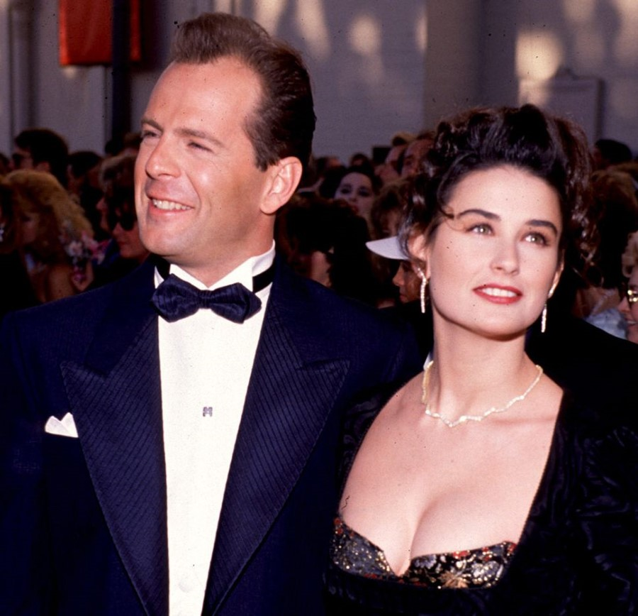 Bruce Willis plastic surgery (38) with Demi Moore