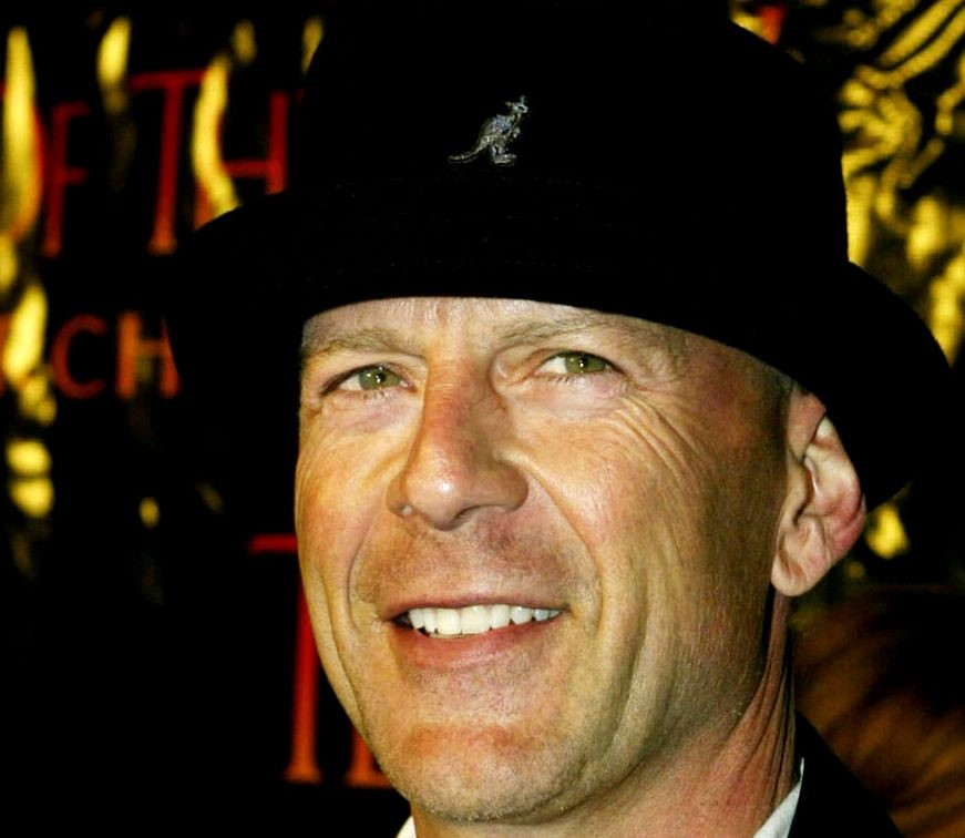 Bruce Willis plastic surgery (39)