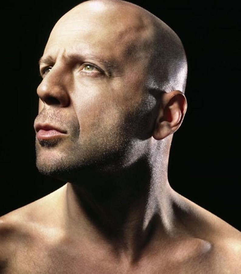 Bruce Willis plastic surgery (8)