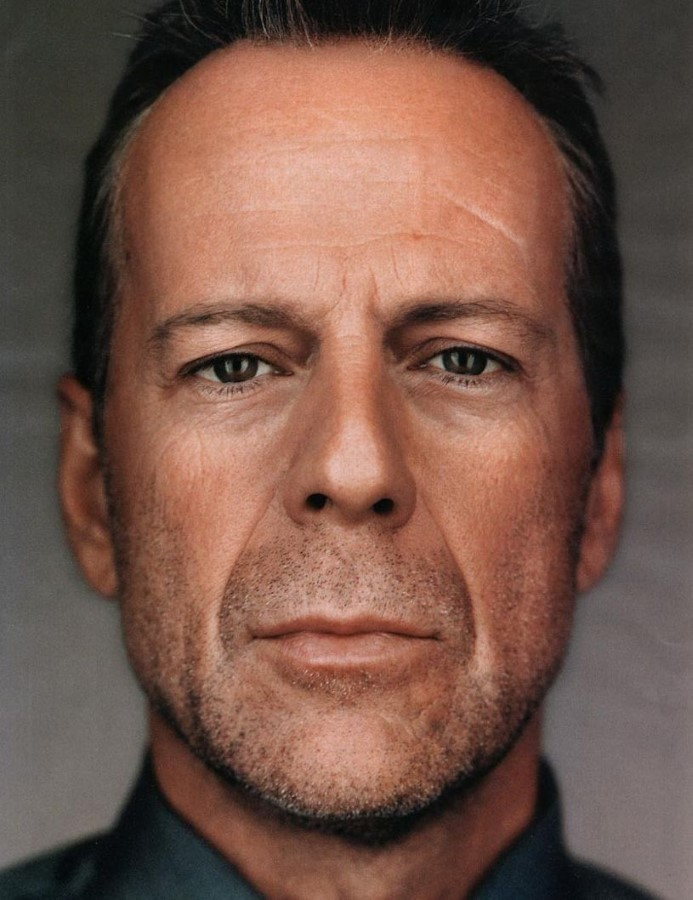 Bruce Willis plastic surgery (9)