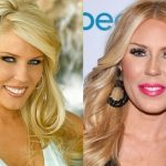 Gretchen Rossi before and after plastic surgery (11)