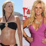 Gretchen Rossi before and after plastic surgery (27)
