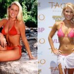 Gretchen Rossi plastic surgery (22)
