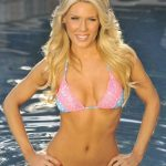 Gretchen Rossi plastic surgery (25)