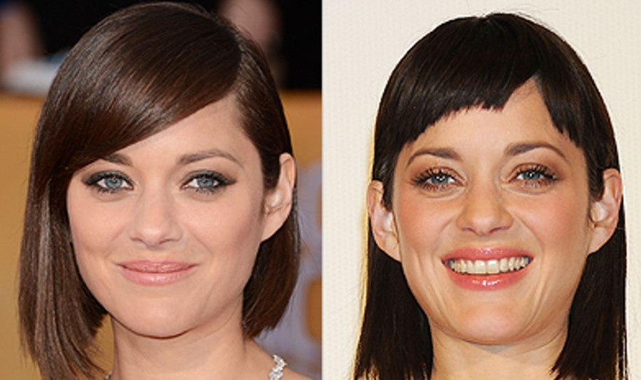 Marion Cotillard before and after plastic surgery