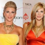 Alexis Bellino before and after plastic surgery (1)