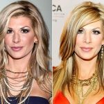 Alexis Bellino before and after plastic surgery (17)