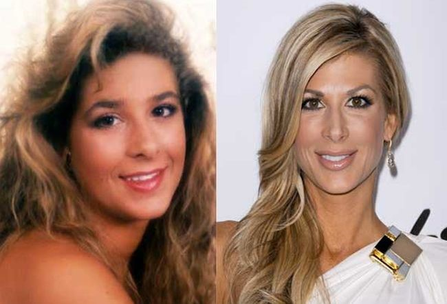 Alexis Bellino before and after plastic surgery