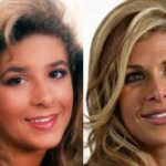 Alexis Bellino before and after plastic surgery (20)