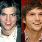 Ashton Kutcher before and after plastic surgery (18)