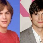 Ashton Kutcher before and after plastic surgery (19)