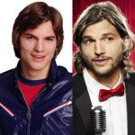 Ashton Kutcher before and after plastic surgery (21)