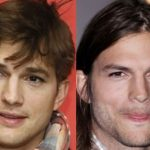 Ashton Kutcher before and after plastic surgery (23)