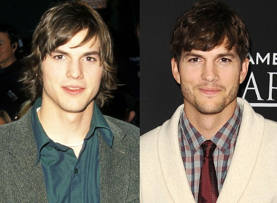 Ashton Kutcher before and after plastic surgery