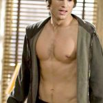 Ashton Kutcher plastic surgery (42)