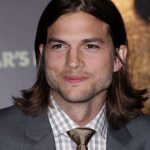 Ashton Kutcher plastic surgery (45)