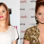 Debby Ryan before and after plastic surgery 01