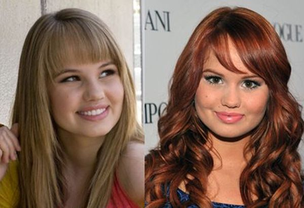 Debby Ryan before and after plastic surgery