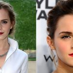 Emma Watson before and after plastic surgery (00)