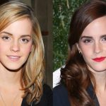 Emma Watson before and after plastic surgery (16)