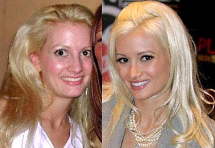 Holly Madison before and after plastic surgery