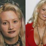Holly Madison before and after plastic surgery (4)
