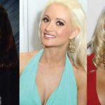 Holly Madison before and after plastic surgery (5)