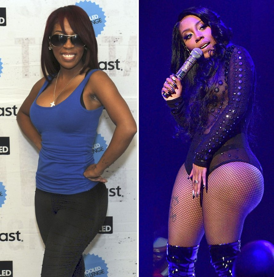 K. Michelle bifore and after plastic surgery