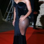 K. Michelle plastic surgery (18)