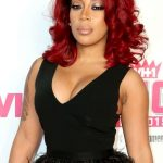 K. Michelle plastic surgery (21)