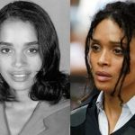 Lisa Bonet before and after plastic surgery