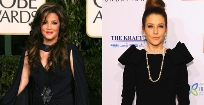Lisa Marie Presley before and after plastic surgery