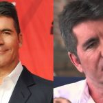 Simon Cowell before and after plastic surgery (38)