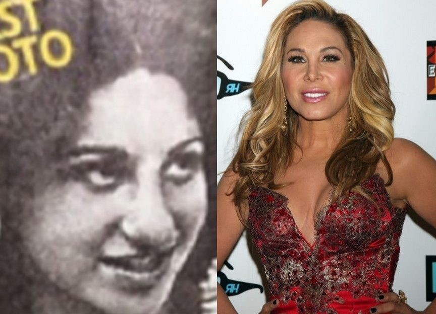 Adrienne Maloof before and afterplastic surgery