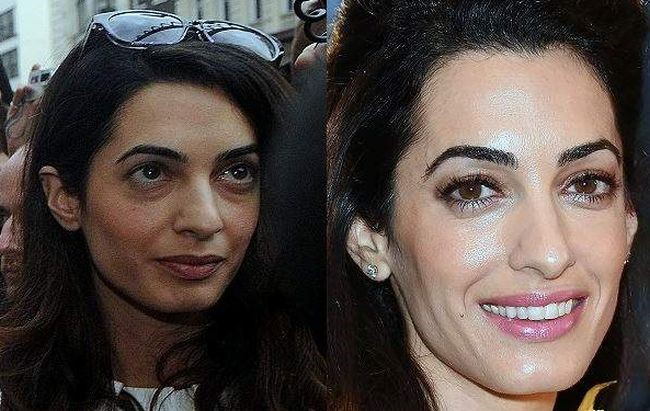 Amal Clooney before and after plastic surgery