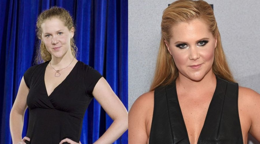 Amy Schumer before and after plastic surgery