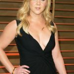 Amy Schumer plastic surgery (11)