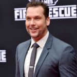 Dane Cook plastic surgery (43)