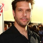 Dane Cook plastic surgery (49)
