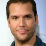 Dane Cook plastic surgery (52)