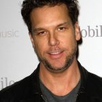 Dane Cook plastic surgery (56)