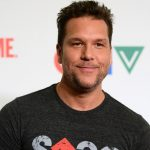 Dane Cook plastic surgery