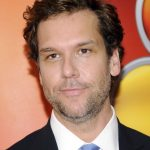 Dane Cook plastic surgery (70)