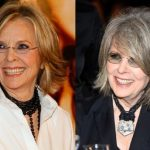 Diane Keaton before an after plastic surgery (10)