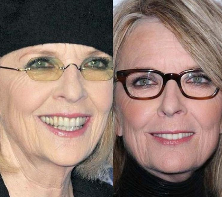 Diane Keaton before an after plastic surgery