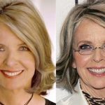 Diane Keaton before an after plastic surgery (7)