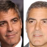 George Clooney before and after plastic surgery (4)